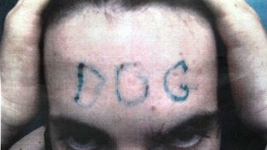 The victim shows what was done to his forehead in this police photograph.