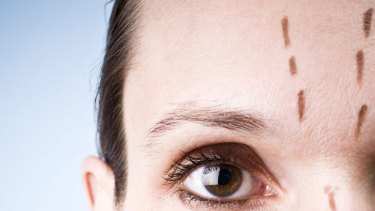 A facelift now means less scarring and downtime, with a much more natural look.