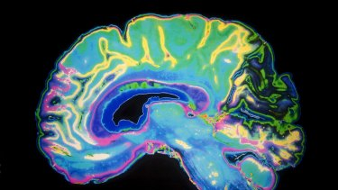 Coloured MRI Scan Of Human Brain  generic   Keywords  Alzheimer s Disease, Anatomy, Anxiety, Biology, Color Image, Concepts & Topics, Contemplation, Copy, Cut, Dementia, Depression, Dressing Up, Healthcare And Medicine, Horizontal, Human Brain, Ideas , Illness, Image, Intelligence, Magnet, Memory, Mental Health, Mind, MRI Scanner, Order, People, Photography, Resonance, Science, Space, Technology      25209433