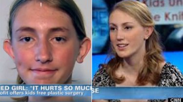 Drastic action ... Nadia Isle, 14, before her surgery, left, and after.