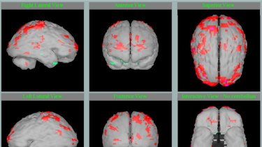 The brain scan of a six-year-old boy who experienced severe neglect and abuse in the first two years of his life. The areas in red show where the brain is not functioning normally.