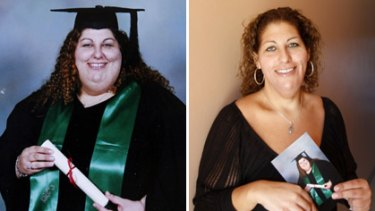 Cassandra Farhart... before and after her surgery.
