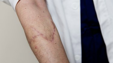 The scars on Dr Wong's arm after the attack in February 2014.