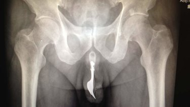 An x-ray of the dining fork, lodged in the man's penis.