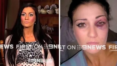Katie Lewis claimed to have been assaulted by NRL player Ben Te'o.