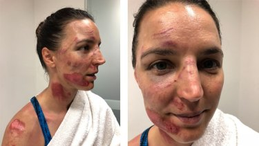 Rebecca Wiasak was hurt when she crashed on Thursday.