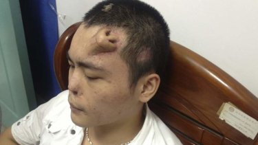 A new nose grown by surgeons on Xiaolian's forehead, is pictured before being transplanted to replace the original nose.