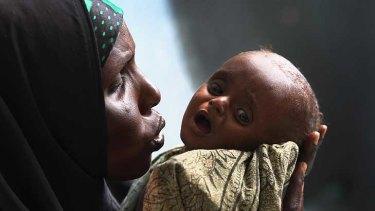 Halima Hassan comforts her severely malnourished son Abdulrahman Abshir, 7 months, at the Banadir hospital  in Mogadishu.