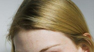 Tan-free zone ... Aussie model Alyssa Sutherland's pale skin sends a healthy message.