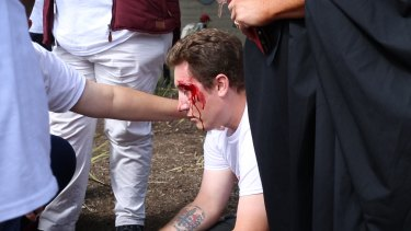 A man suffers a nasty head injury at Sunday's anti-Halal protest.