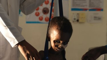 Being weighed. Niman Adan Gabush, 2, is a severe malnutrition case at Hargeisa Group Hospital in Somaliland.