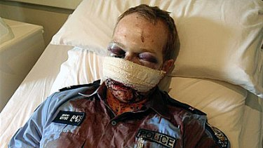 Constable David Rudd was injured while attending a disturbance at Wyndham on Christmas morning.