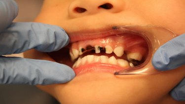 More than one-third of NSW children aged five to 10 have decay in their baby teeth.