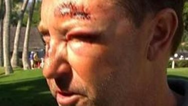 It has been a difficult year for Robert Allenby, who was attacked in Hawaii.