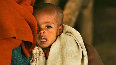 A 10-month-old Ethiopian child suffers malnutrition while the rich speculate on food prices.