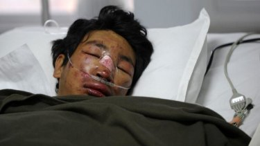 Survivor: Nepalese mountaineer Dawa Tashi Sherpa lies in the Intensive Care Unit at Grande International Hospital in Kathmandu.