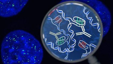 This artists' impression shows regular DNA in blue and 'knots' in green.