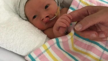One-day-old Riley Bell with a nasal gastric tube used to feed him for three weeks.
