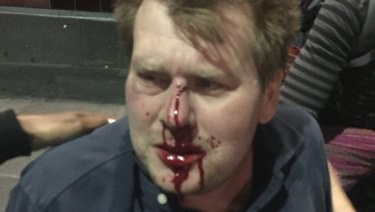 Comedian Peter Morley in a picture taken immediately after the attack.