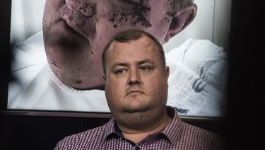 Brendan as he appeared on Monday with a picture of himself after the attack behind him.