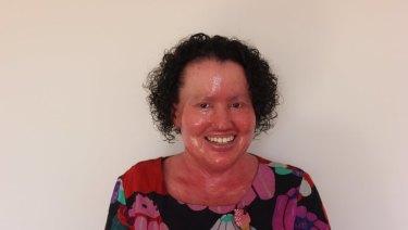 Writer and activist Carly Findlay