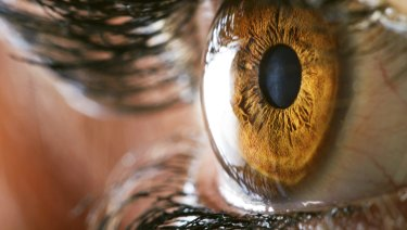 Freckles on the eye could be used a marker for melanoma risk in younger patients, a Queensland professor says.