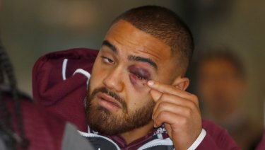 Shiner: Dylan Walker after tangling with Curtis Scott.