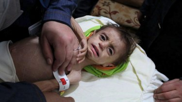 A severely malnourished child at the al-Kahef hospital in Kafr Batna, Eastern Ghouta near Damascus, Syria, last year.