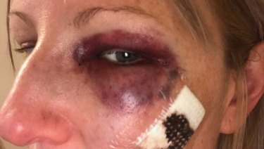Samantha Mitchell, 32, after being allegedly assaulted by Ballarat police sergeant David Berry.