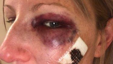 Samantha Mitchell, 32, after being allegedly assaulted by Ballarat police sergeant David Berry.
