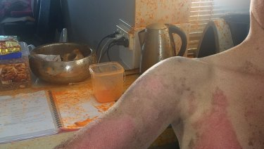A Perth mother suffered second-degree burns to her chest, arms and stomach after her Thermomix unexpectedly burst open while she was preparing dinner.
