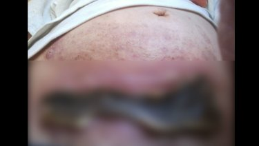 Fairfax Media was provided with an image of the wound on Helen Lawson's stomach after she tried to treat her ovarian cancer with black salve, but has chosen only to run a blurred version because it is so confronting.