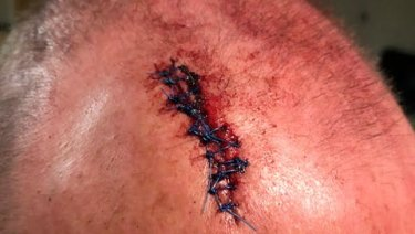 The police officer had to get 12 stitches after being hit from behind.