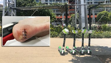 Jordan Madigan's heel was ripped open by a Lime scooter in Brisbane in January.