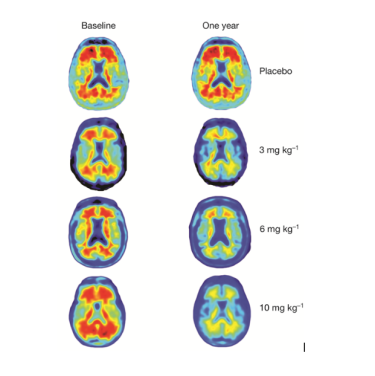 The red marks show amyloid plaques but after a year they are gone in the highest dose group