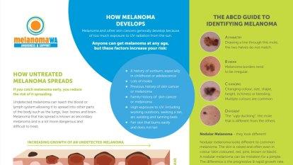 WA researchers develop 'world-first blood test' to catch melanoma: ECU