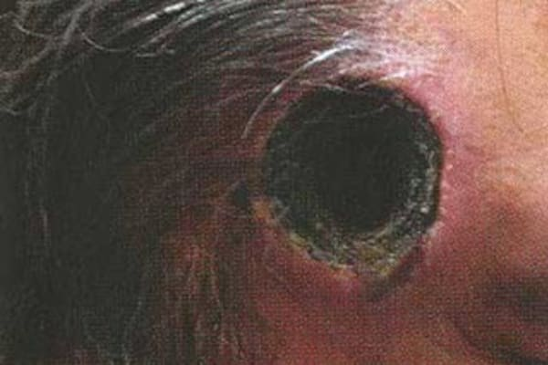 skin cancer warning over bogus black salve treatment