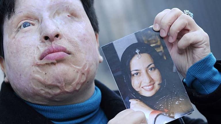 Forgave her attacker ...  Ameneh Bahrami holds a photograph of herself before she was blinded by a man who threw acid in her face.