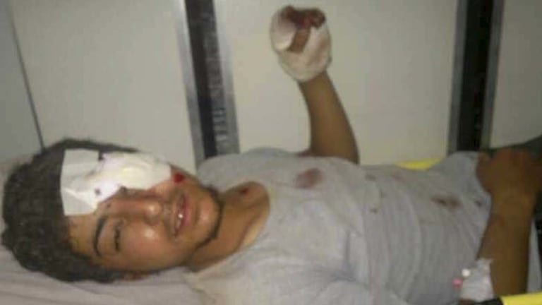 One of the so-called aid workers lying injured.