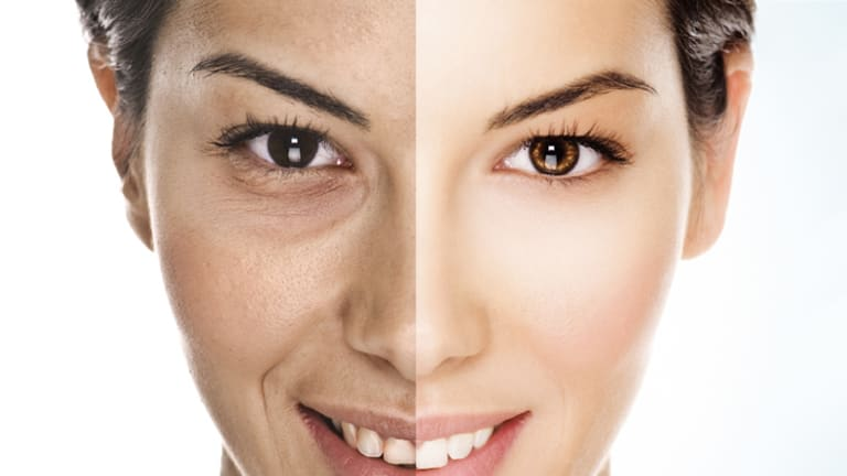 Younger, yes ... but is cosmetic surgery worth the risk? <i>Photo has been digitally altered.</i>