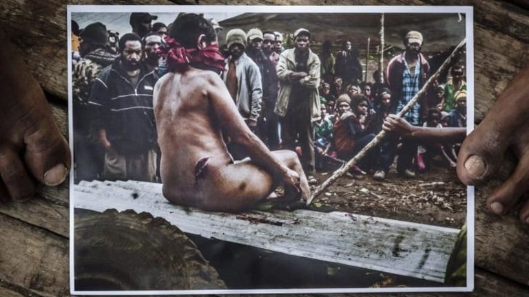 Torture: This woman was accused of sorcery and assaulted by people from her village.No one was charged with the attacks on her.