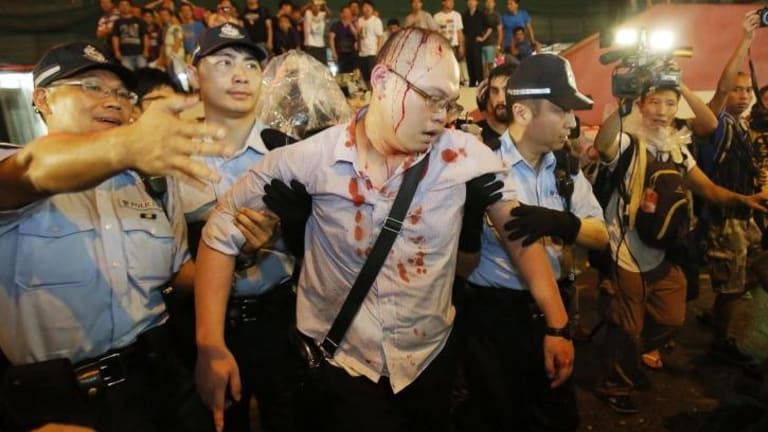 Bloodied, but unbeaten: Police take an injured man from the confrontation of pro-democracy student protesters and angry local residents in Mong Kok, Hong Kong.