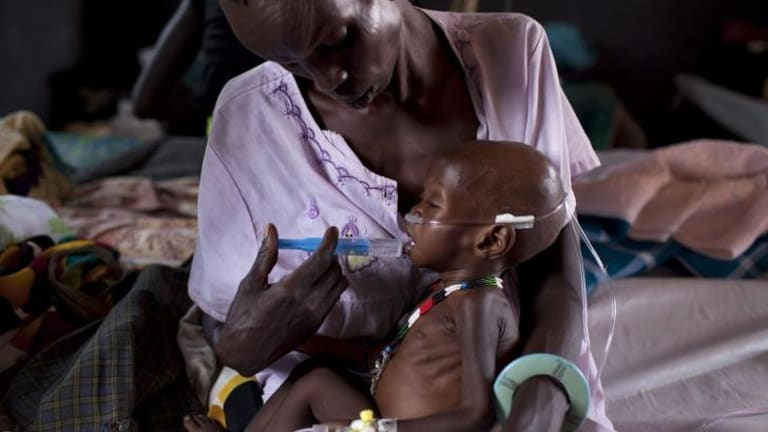 A child suffering from malnutrition is treated at a medical camp in March run by Medecins Sans Frontieres.