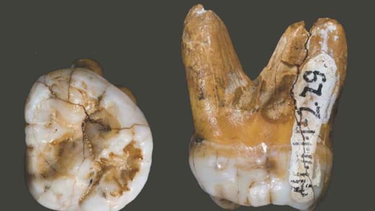 Remains of the day ... the tooth of a recently discovered human relative, Denisovan.