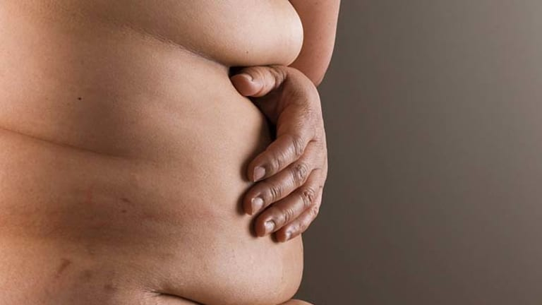 Obesity is a threat of food security, researchers say.