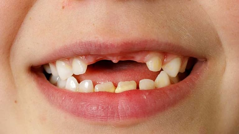 The number of decayed, missing and filled baby teeth was 46 per cent higher among children who consumed three or more sweet drinks a day.