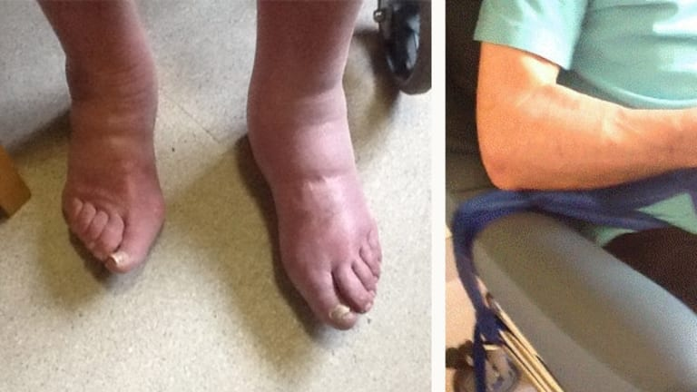 John Daly's swollen feet; strapped to a wheelchair.