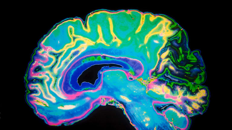 Making the right connections: Neuroplasticity and how the brain fixes itself