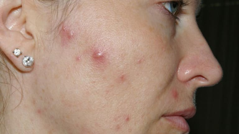 Wendy Reiner, before using her acne cream