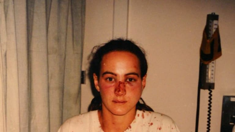 Corinna Horvath after being beaten in 1996.